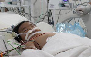 Ngộ độc xăng bé trai 17 tháng tuổi nguy kịch