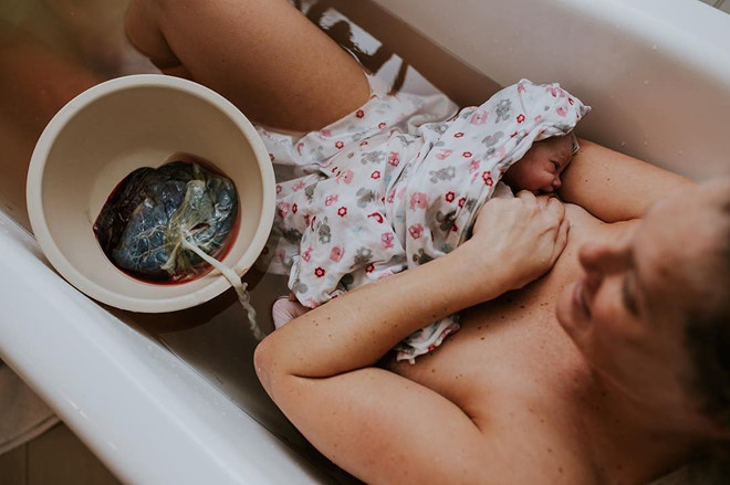 sinh con thuận tự nhiên tiềm ẩn nguy cơ tử vong gấp 7 lần