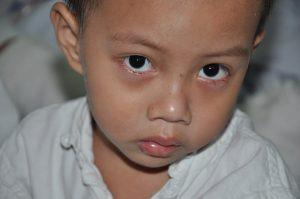 Xót thương hoàn cảnh bé 4 tuổi không cha, không mẹ nguy kịch vì viêm khớp